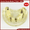 Dental implant study model