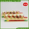 Dental periodontal disease study model