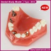 Dental study model / dental implant model